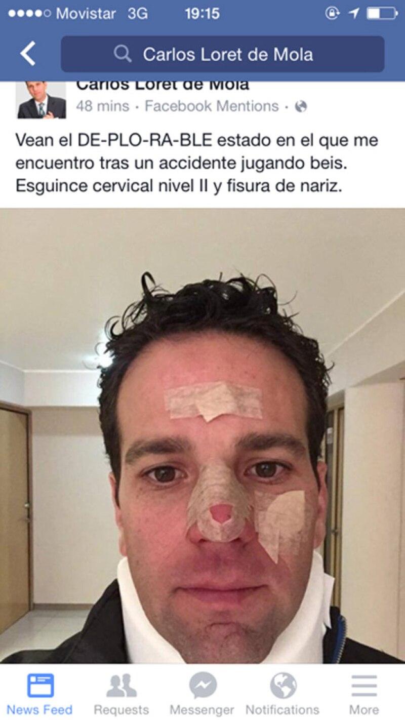 El periodista tuvo un accidente al practicar este deporte, rompiéndose la nariz y sufriendo un esguince cervical.