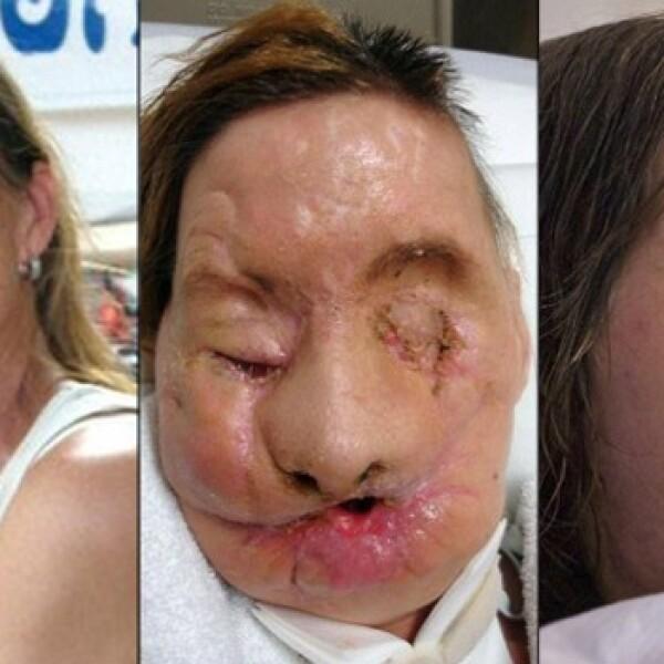 Charla Nash trasplante de cara 2011