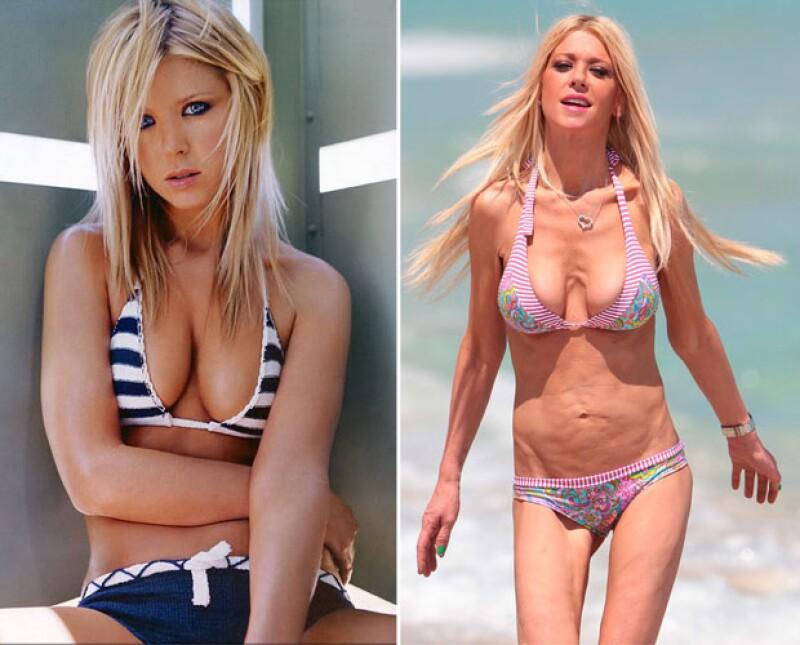 El antes y el después de la figura de Tara Reid.