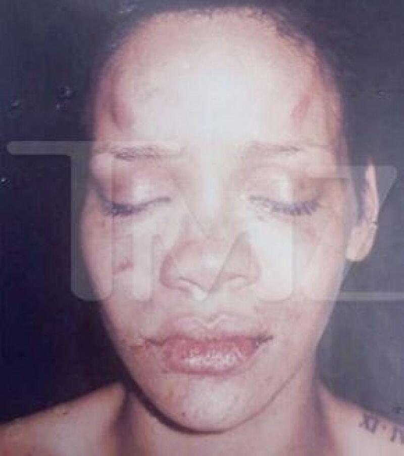 La imagen muestra golpes en la frente, sobre las cejas, y alrededor de los labios, así como inflamación general.