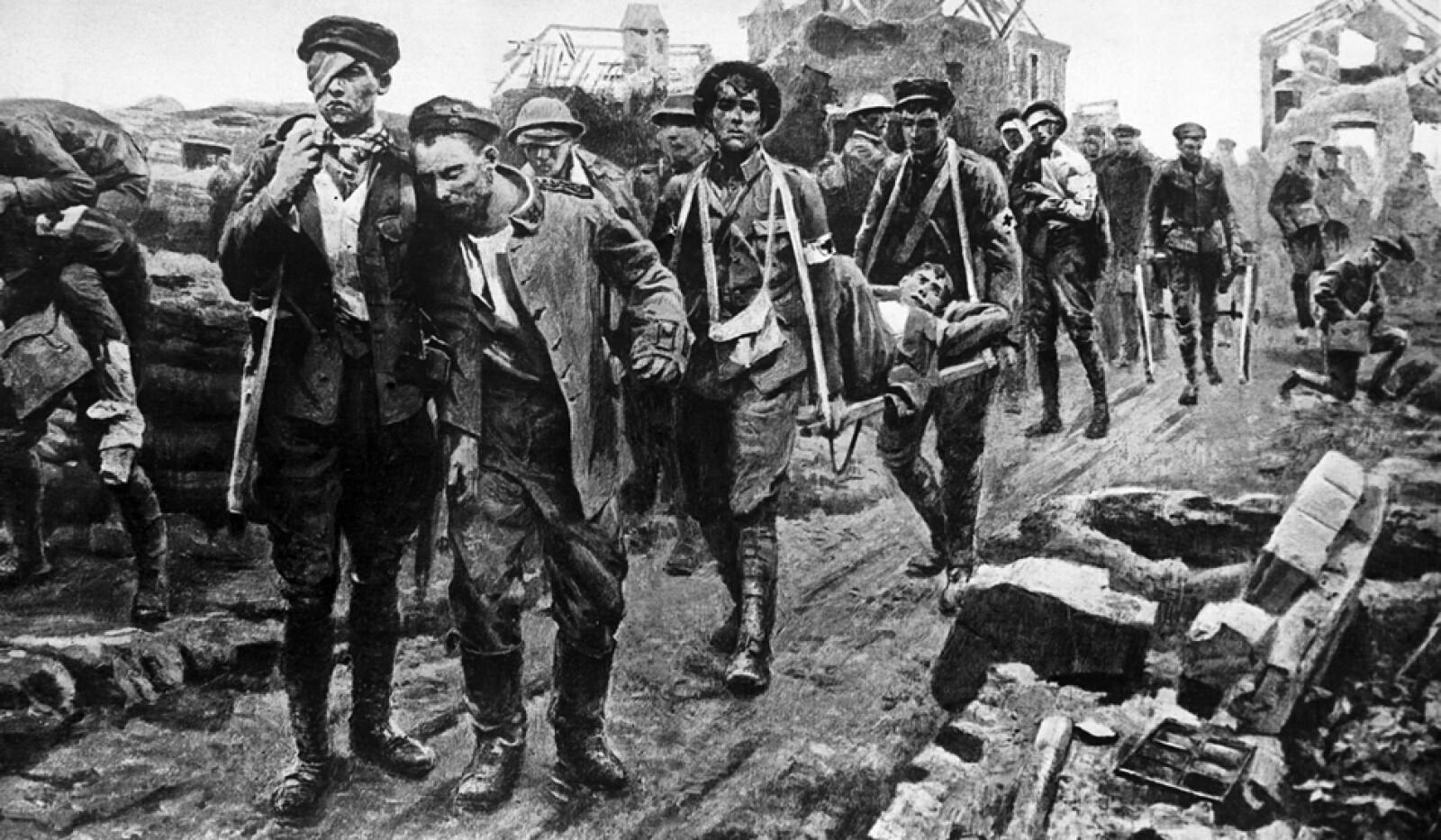 Primera Guerra Mundial 4