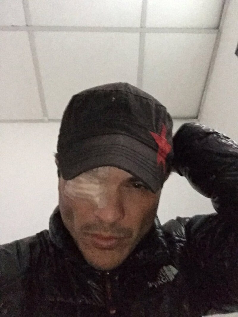 El actor espresó que el departamento de maquillaje de la producción no investigó que los químicos eran tóxicos.