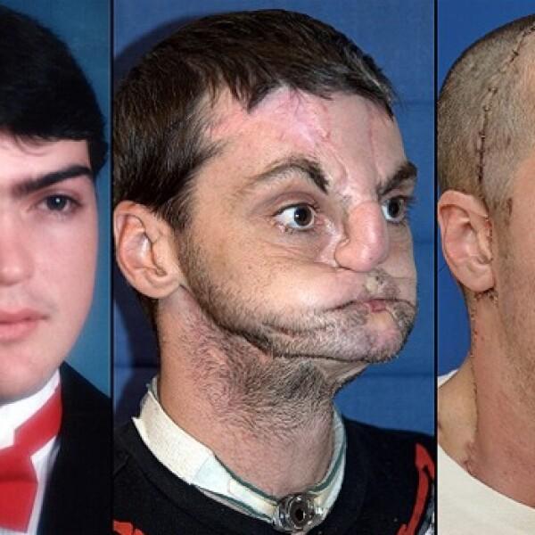 Richard Norris trasplante de cara