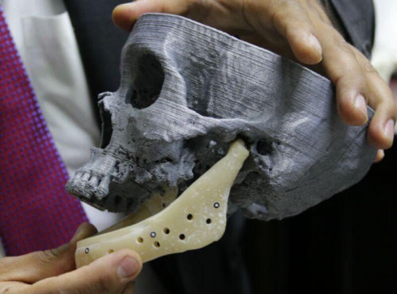 implantes de mand�bula en impresi�n 3D
