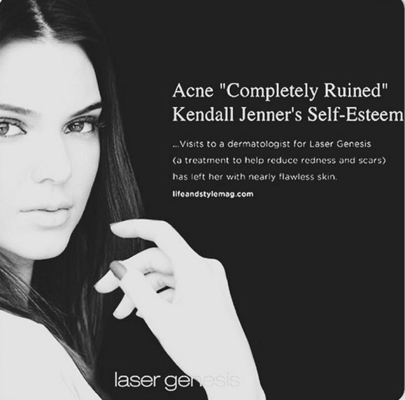 La envidiable piel de la joven modelo la ha llevado a querer ser utilizada por esta marca.