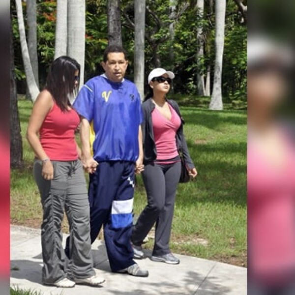 Hugo Chavez Rehabilitacion 3