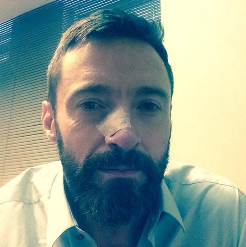 El actor se sometió por segunda vez a un procedimiento para retirar un carcinoma basal, asegura que ya todo está retirado.