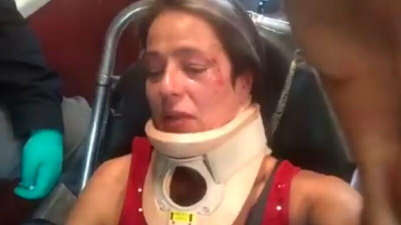 América Gabriel publicó un par de videos en Instagram del hombre que la agredió luego de que ella le pidiera alzar el excremento de su perro mientras paseaba en Parque México, en la Condesa.