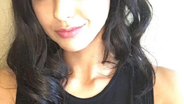 Una joven también aspirante a actriz, sufrió un fuerte accidente luego de que la cámara aérea se impactara contra su cara en plena sesión de fotos.