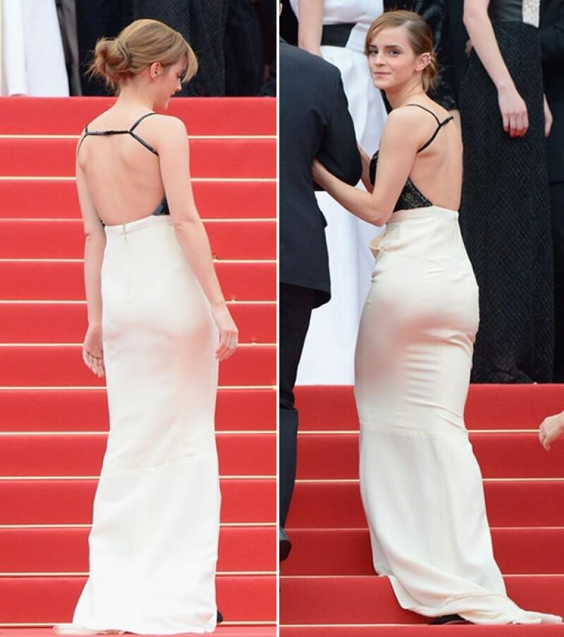 Emma presumió la espalda.