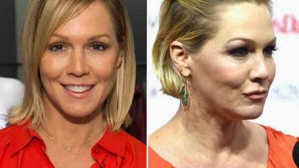 La actriz, conocida por la serie Beverly Hills 90210, desató rumores de haberse practicado botox o, incluso, de haberse realizado una cirugía estética para restirarsela.