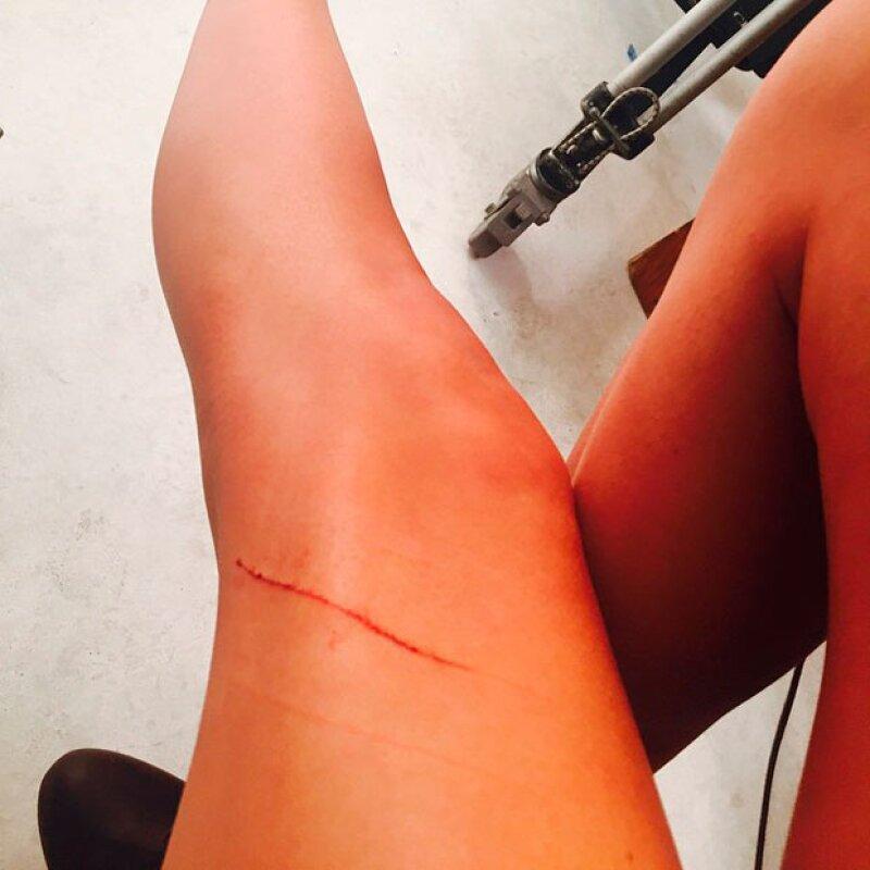Taylor sufrió una primer herida en sus valiosísimas piernas a días de haberlas asegurado.