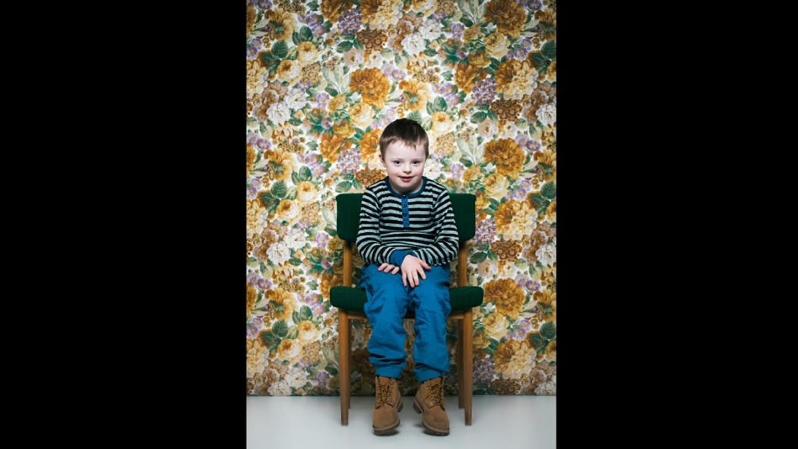 Garoar síndrome de Down