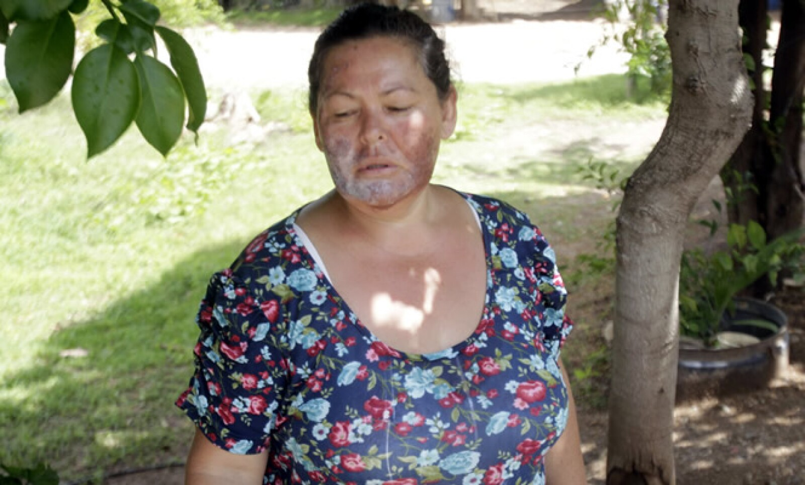 Una habitante fue afectada al lavarse la cara con agua del río sin saber que estaba contaminada con ácidos y metales pesados.