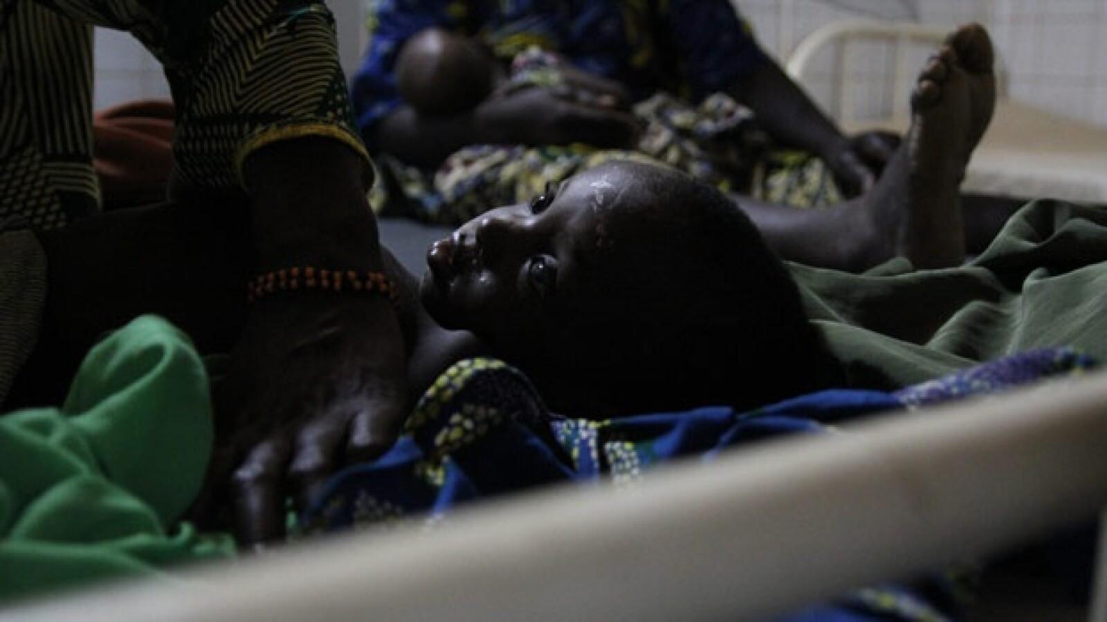 Áfríca - niña con sarampión