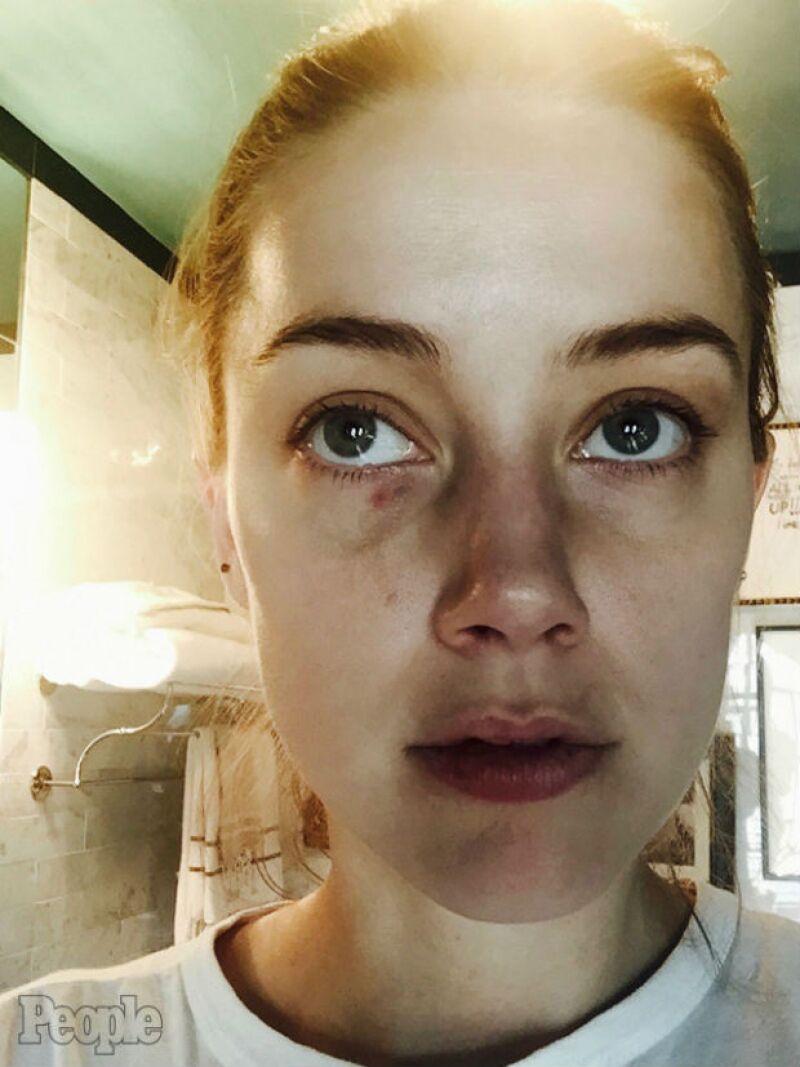Estas son las evidencias de la supuesta agresión que la actriz sufrió en diciembre del año pasado.