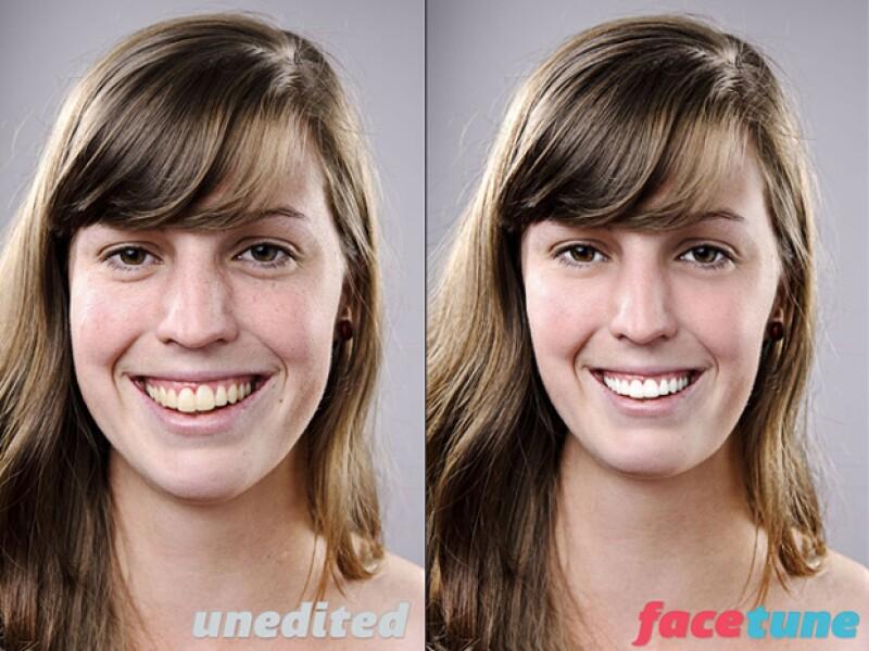 Permite eliminar arrugas y marcas de acné.