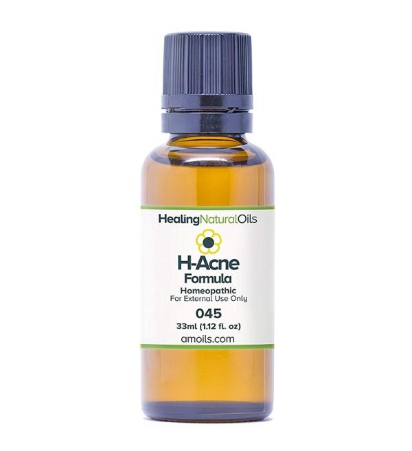 H-Acne