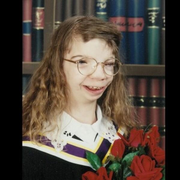 Penny Loker síndrome Goldenhar microsomía hemifacial