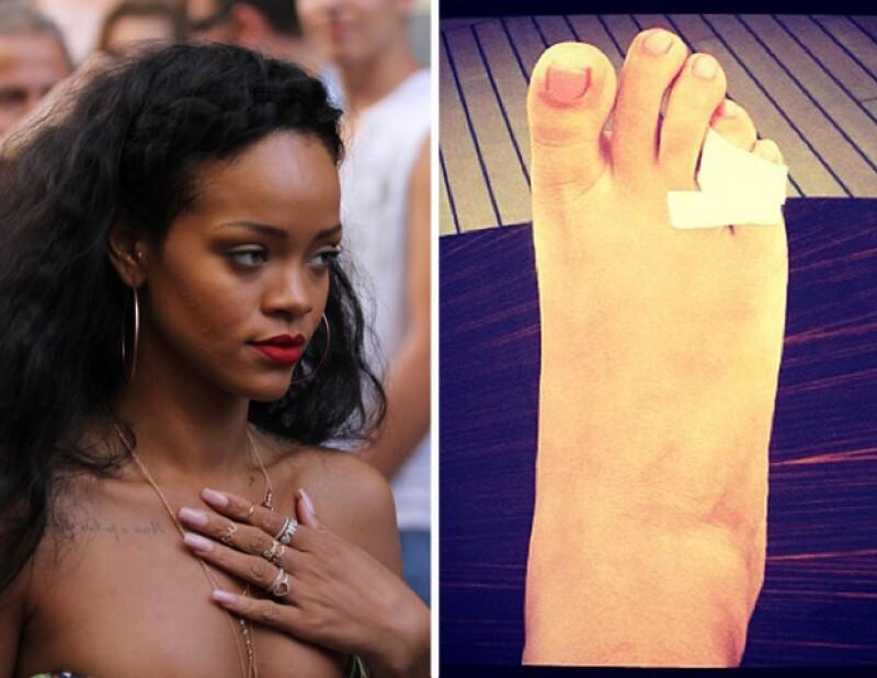 La cantante mostró en Twitter una imagen donde muestra que tiene roto un dedo del pie.