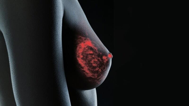 cáncer de mamá