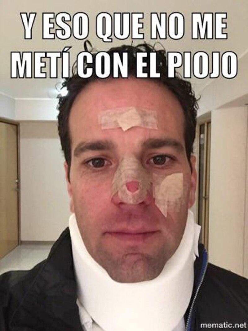 Hace referencia al caso de El Piojo Herrera, a pesar del accidente l periodista no pierde el humor.