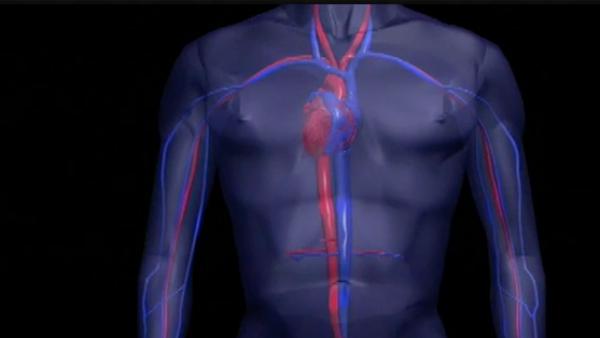 ¿Se puede ser saludable y sufrir un ataque cardíaco?