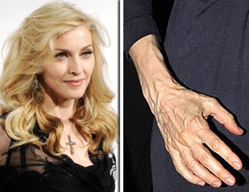 Actualmente la reina del pop usa guantes para ocultar sus manos.