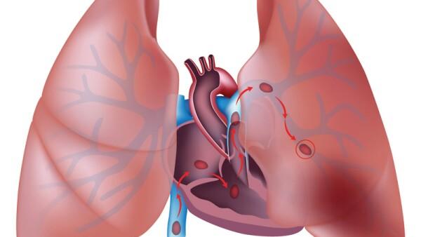 Tromboembolismo pulmonar COVID-19