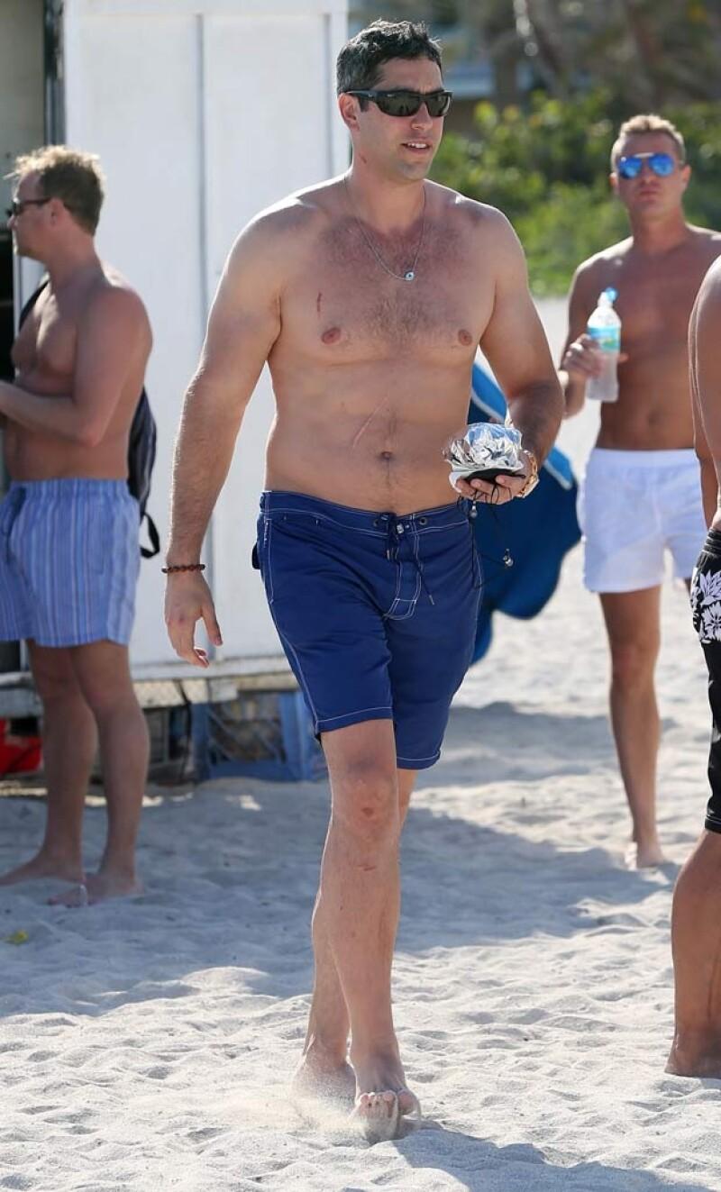 Nick Loeb en Miami y algunos rasguños en el cuello, pecho y rodilla.