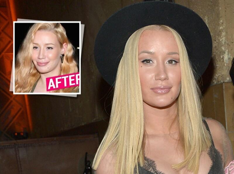 La cantante fue captada este fin de semana en Los Ángeles; medios estadounidenses aseguran que pudo haberse sometido a una nueva cirugía estética, ¿qué opinas?