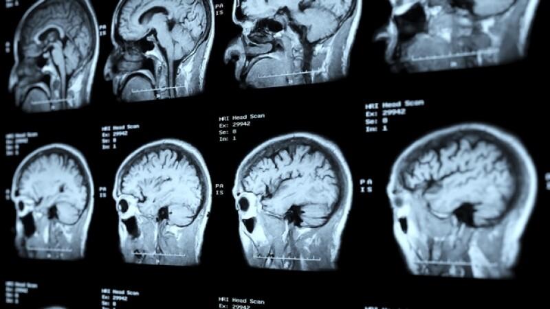 cerebro escaneo GET