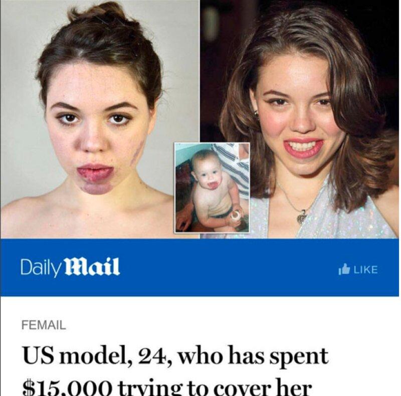 En entrevista con Daily Mail, Celina reveló que en sus 24 años de vida ha gastado 15 mil dólares entre tratamientos y operaciones en su cara.