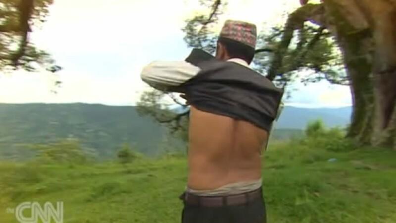 trafico riñones nepal