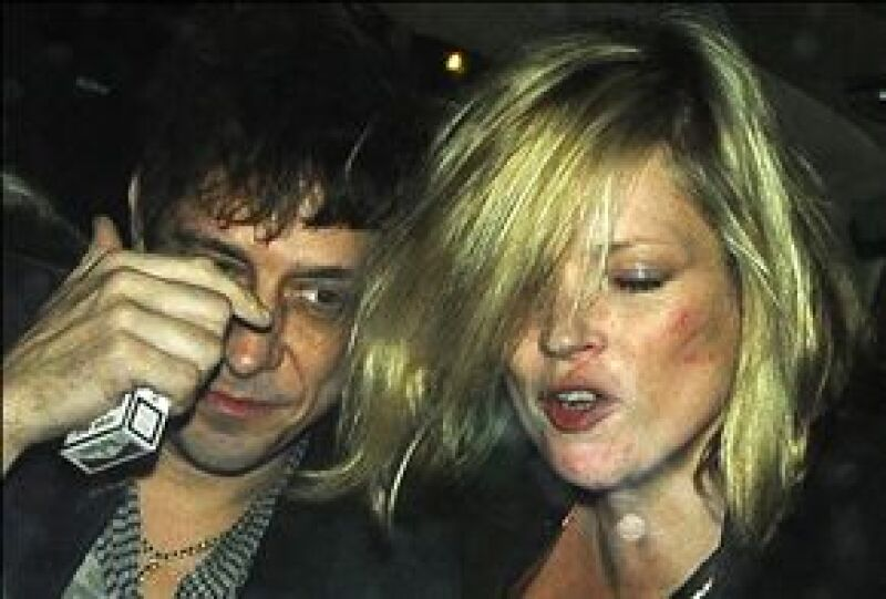 La modelo británica fue captada con su novio en estado de ebriedad y con marcas en la cara.