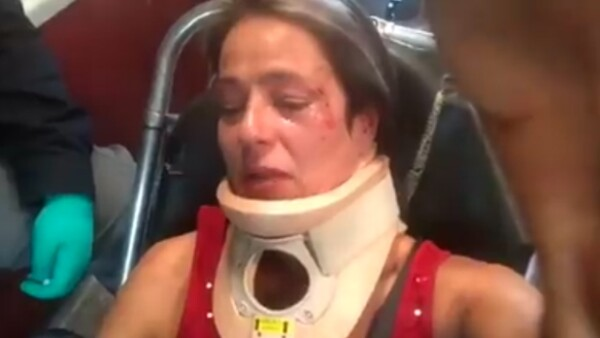 América Gabriel confesó que ya descubrieron la identidad de su agresor, quien la golpeó luego de que ella le pidiera recoger las heces de su perro en Parque México, Condesa.