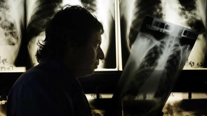 tuberculosis analisis