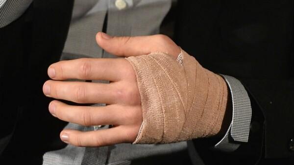 Después de que su mano recibió cortaduras durante la filmación de una película, el incidente no pasó a mayores y se ha reincorporado a sus actividades de promoción.