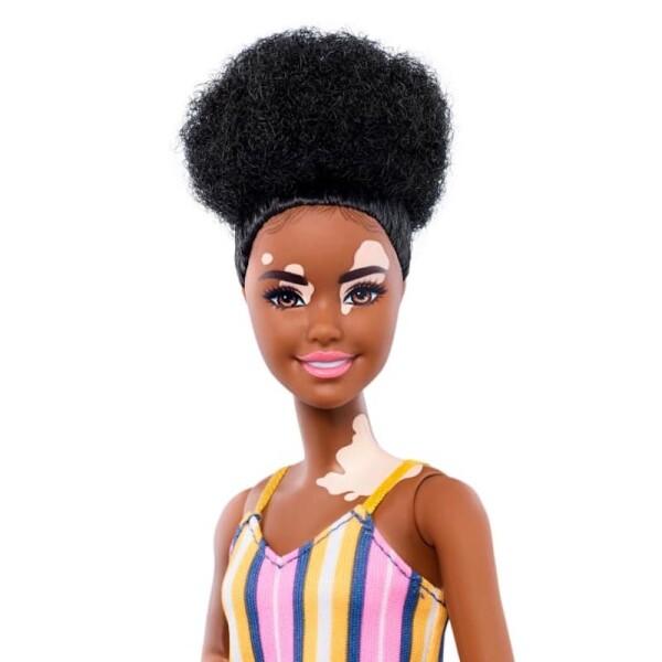 Barbie Vitiligo