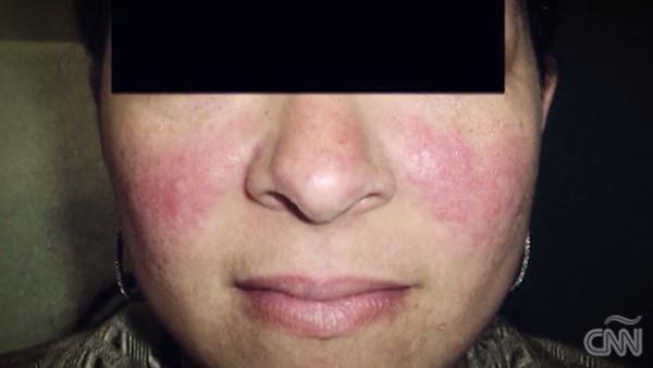 ¿A qué se debe la aparición de las 'arañitas' vasculares en la cara?
