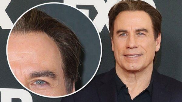 Fue en la gira de prensa de las nuevas series del canal FX, que el actor dejó ver algo inusual en su cabeza. Al parecer, una parte de su pelo estaba pegada a su sien.