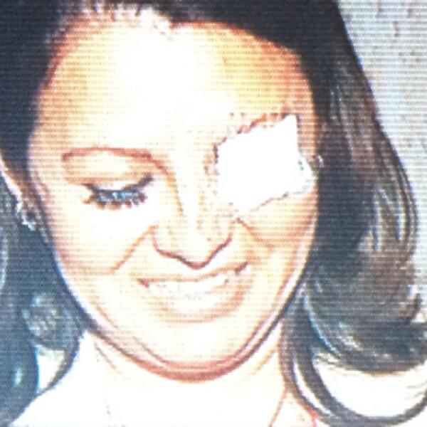 Karen Quiroga, diputada perredista, tuvo un altercado con la diputada Landy Berzunza (en la foto), del PRI, quien tuvo una herida al interior de su ojo tras los arañazos y empujones.