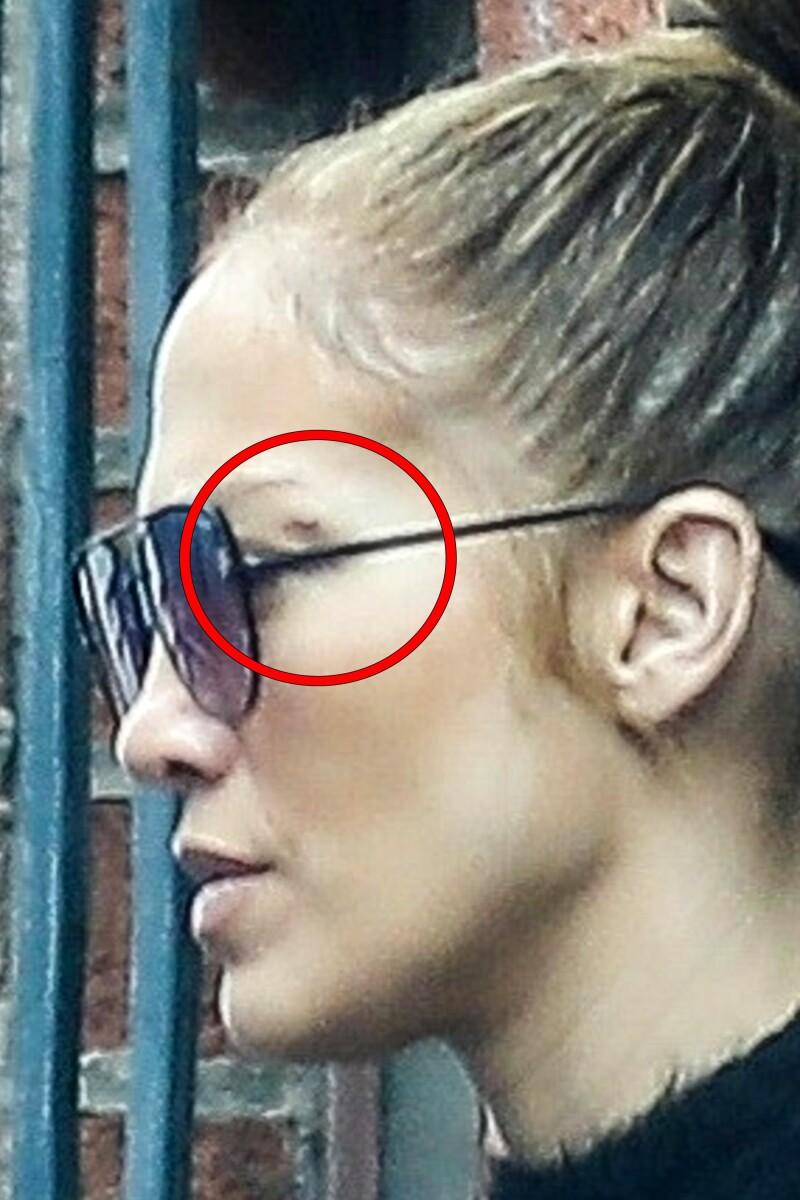 Resultado de imagen para jennifer lopez cicatriz ojo