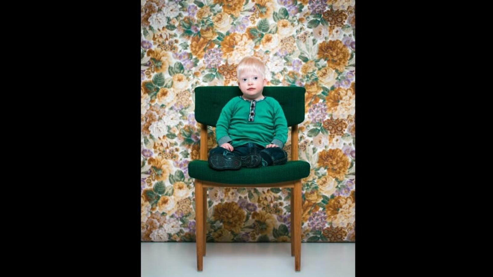 Baldur Ingi síndrome de Down