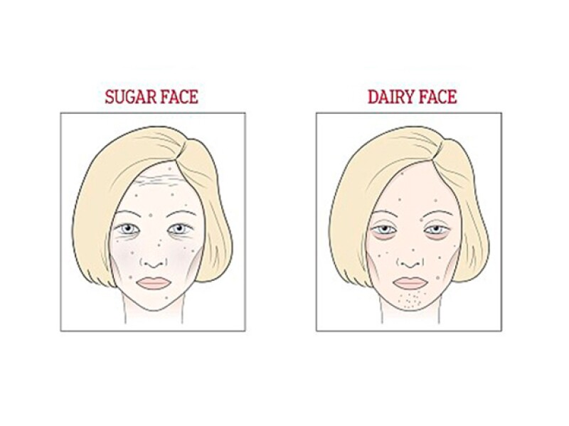 Nigma Talib, una experta en el cuidado de la piel, te muestra cómo identificar en la cara qué alimentos consumes más o cuáles no puedes digerir bien que están causando estragos en tu piel.