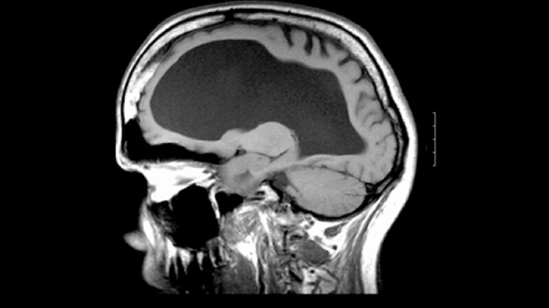 hidrocefalia tomografia