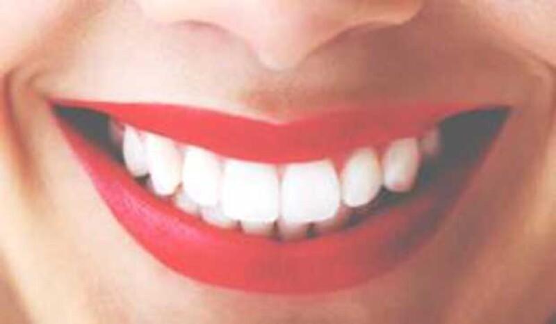 La sonrisa es el mejor accesorio y lo que queremos es conservar nuestros dientes blancos y perfectos. Aunque existen muchos tratamientos, hoy te contamos formas naturales de lograrlo.
