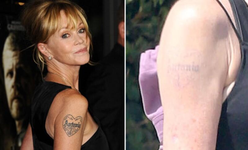 Melanie Griffith se tatuó en honor a Antonio Banderas, y a un año de su separación, hizo que le removieran el tatuaje.