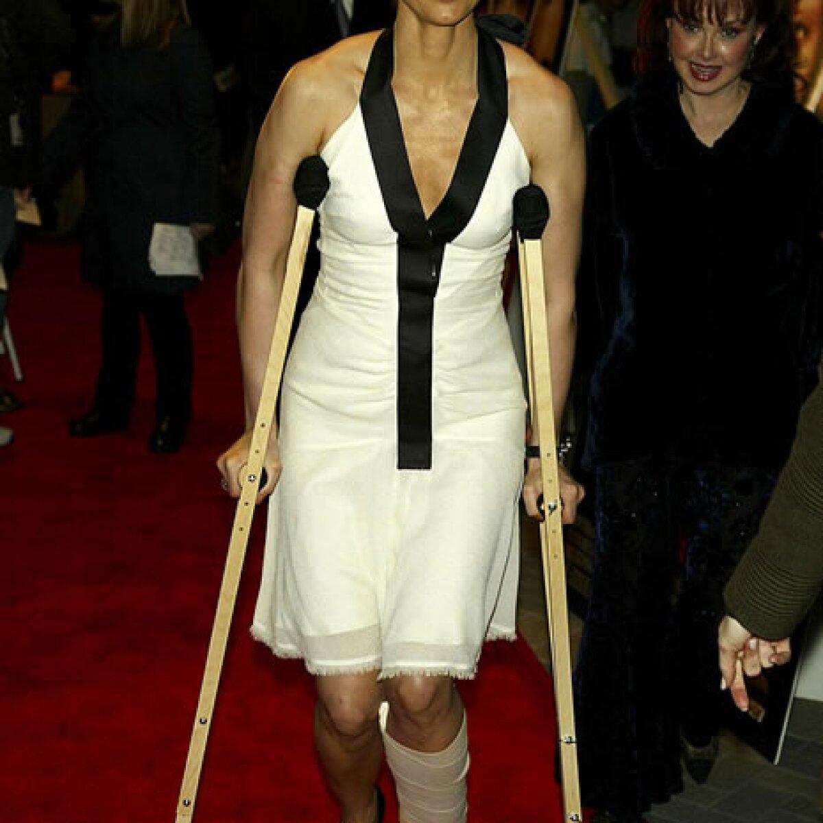 Los famosos presumen sus lesiones con glamour