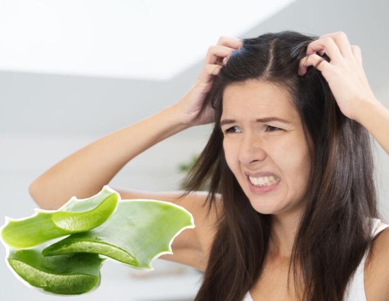 El aloe vera ayuda a calmar irritaciones y comezón del cuero cabelludo.